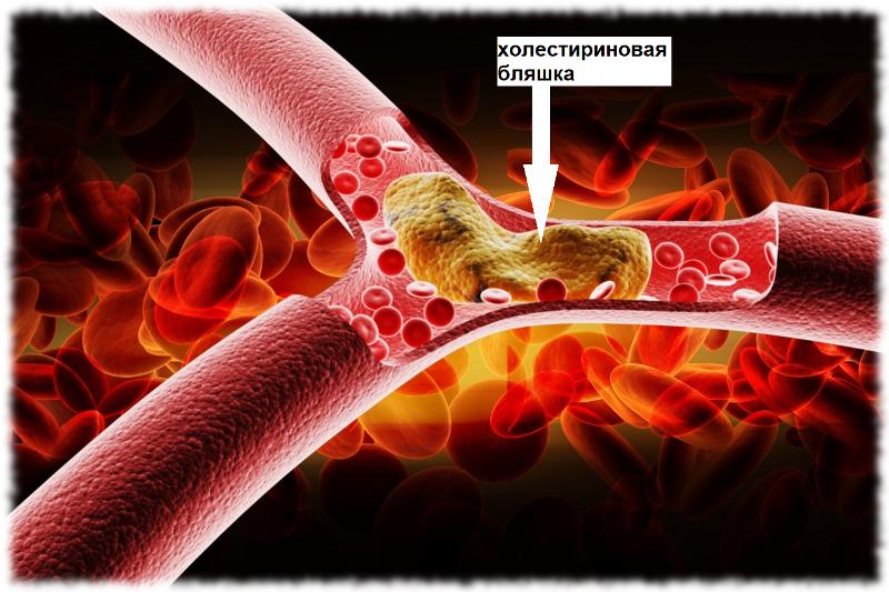 Холестириновая бляшка. Атеросклероз.