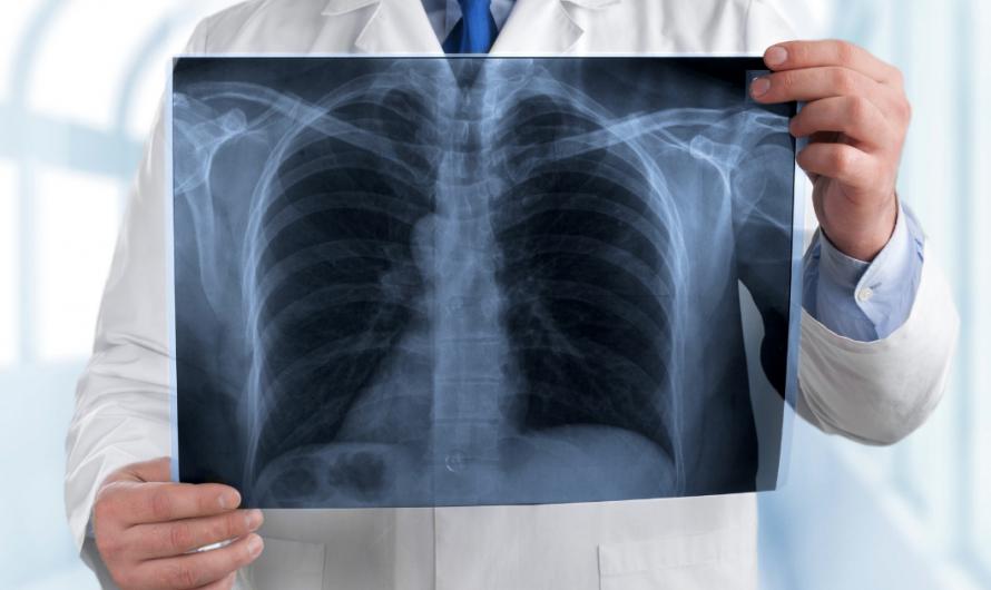 Какие меры необходимо предпринять для восстановления после ковидной пневмонии?