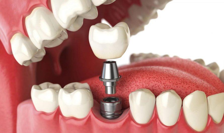 Как осуществляется двухэтапная имплантация зубов?